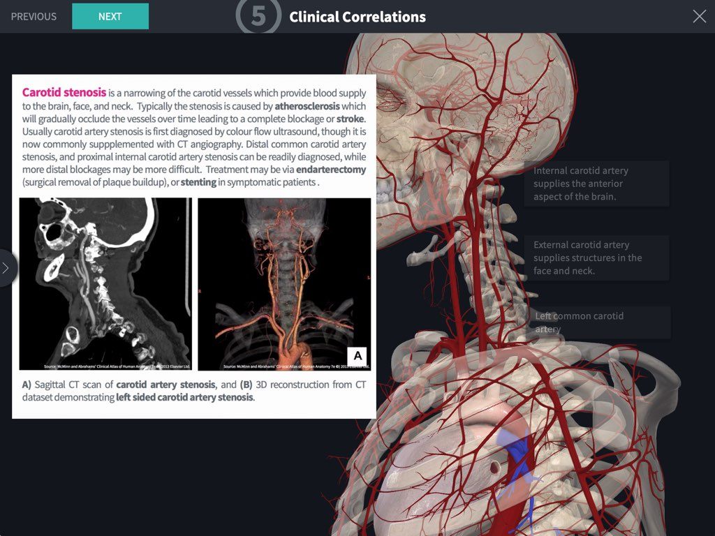 Complete anatomy 3d